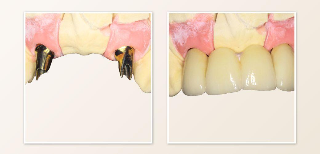 zahnarzt-marklkofen-implantat