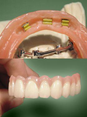 zahnarzt-marklkofen-prothesen